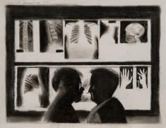 Examining x-rays thumb
